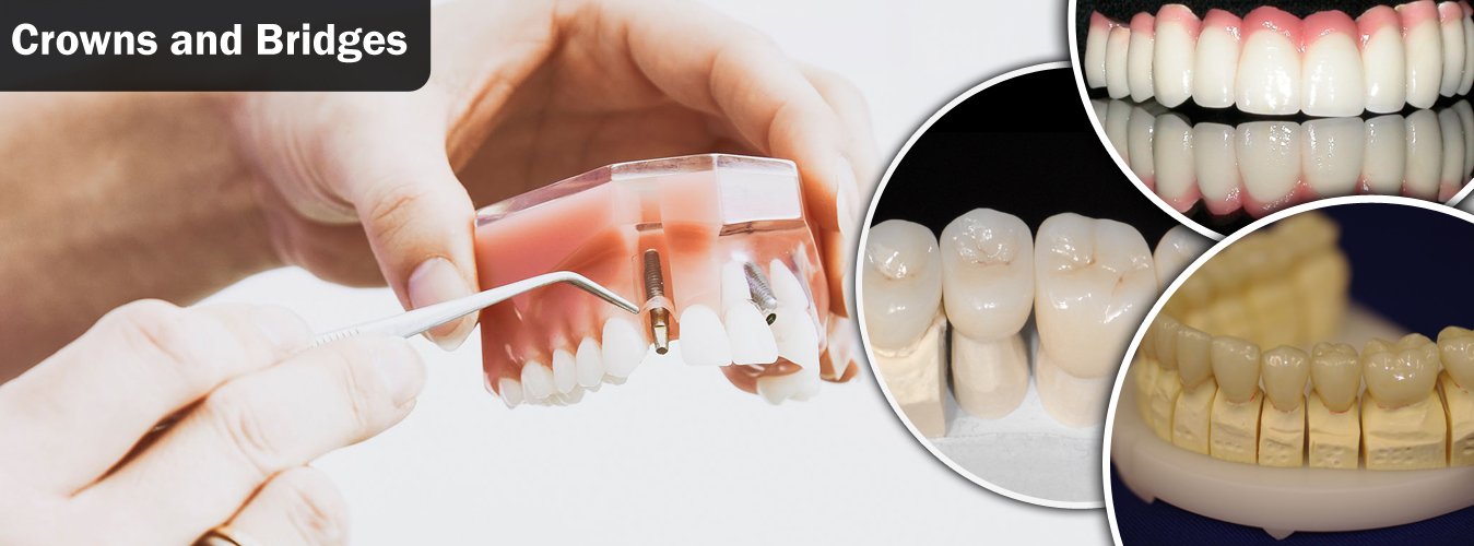 Best Dental Crowns and Bridge Fixing in Pune